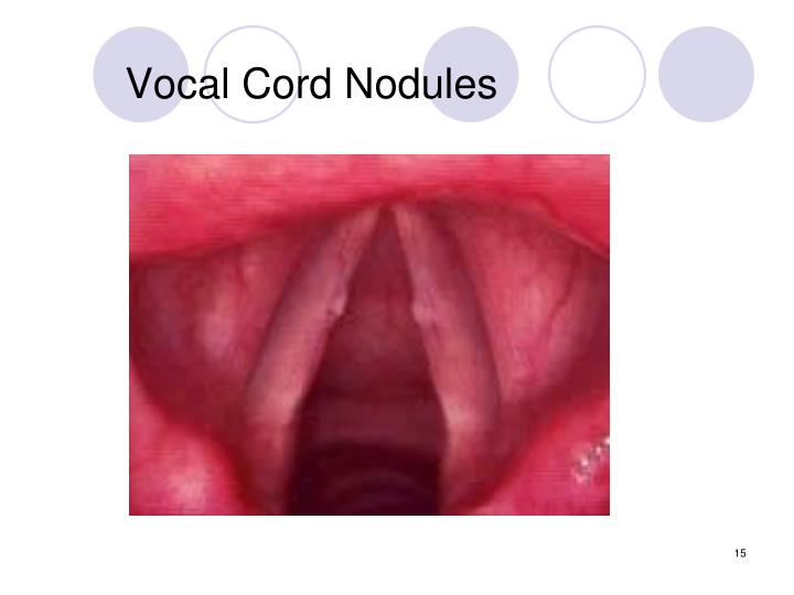 Vocal Cord Nodules