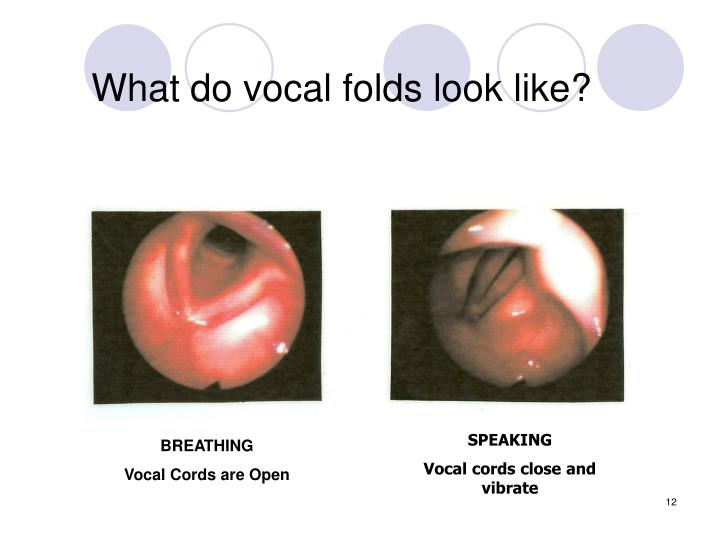 What do vocal folds look like?