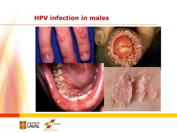 HPV infection in males