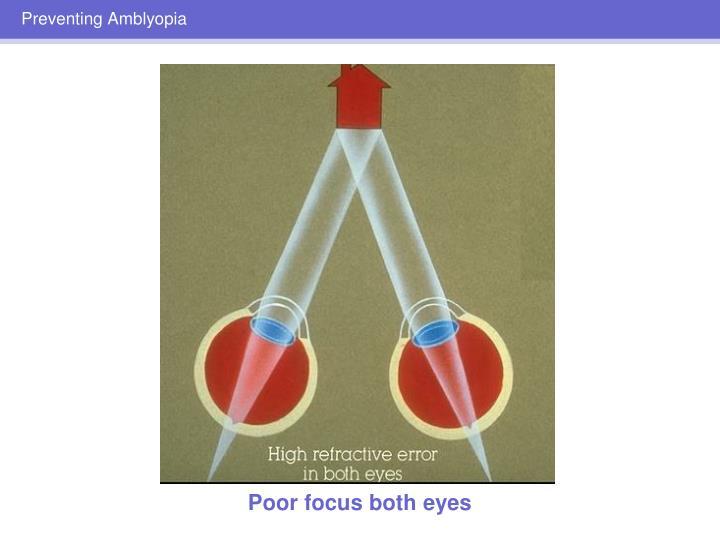 Preventing Amblyopia