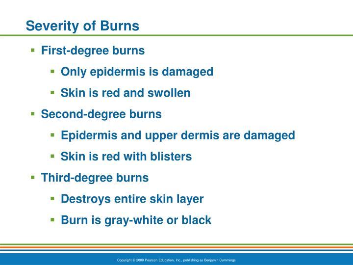 Severity of Burns
