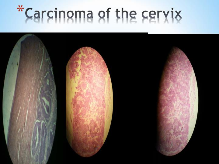 Carcinoma of the cervix