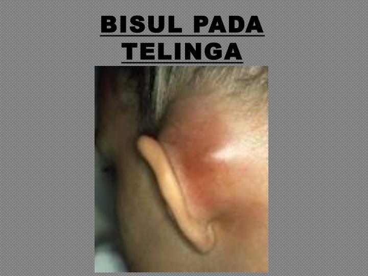 Bisul pada telinga