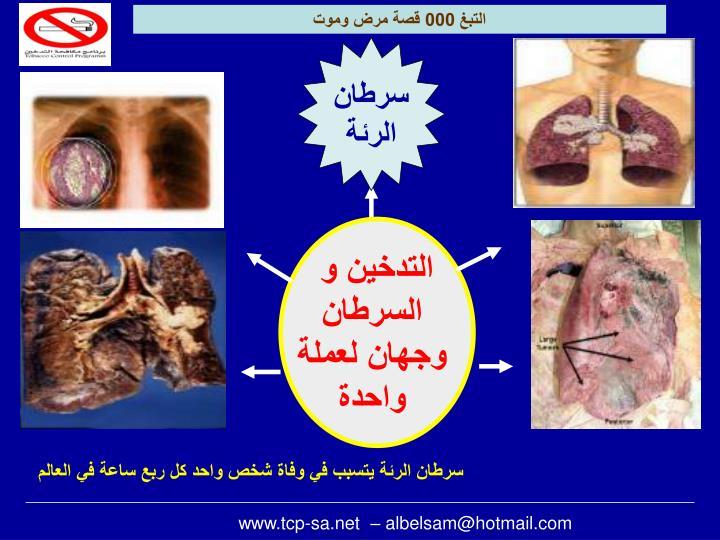 التبغ 000 قصة مرض وموت