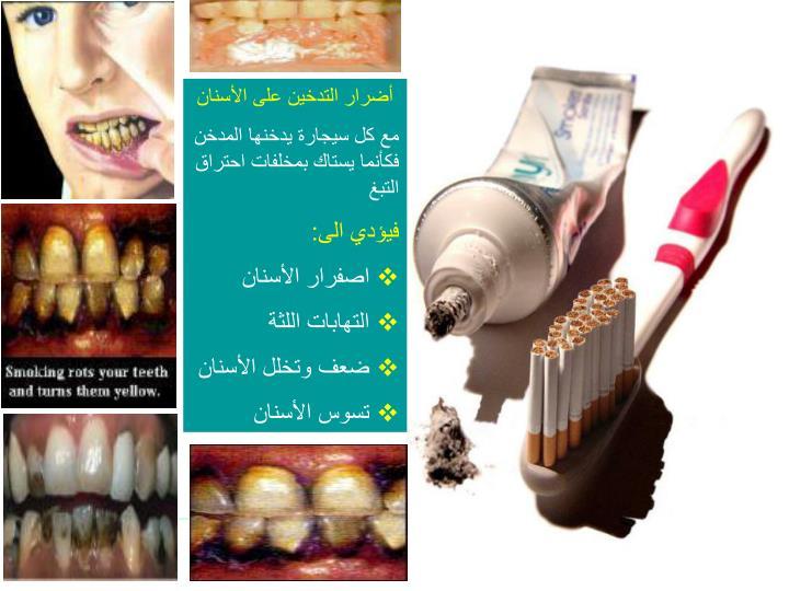 أضرار التدخين على الأسنان