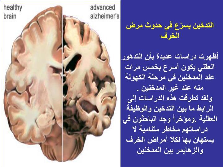 التدخين يسرّع في حدوث مرض الخرف
