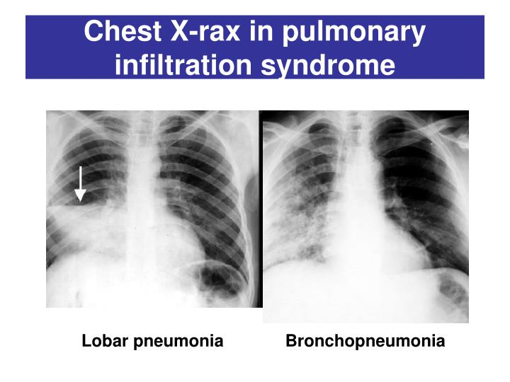 Chest X-rax in p