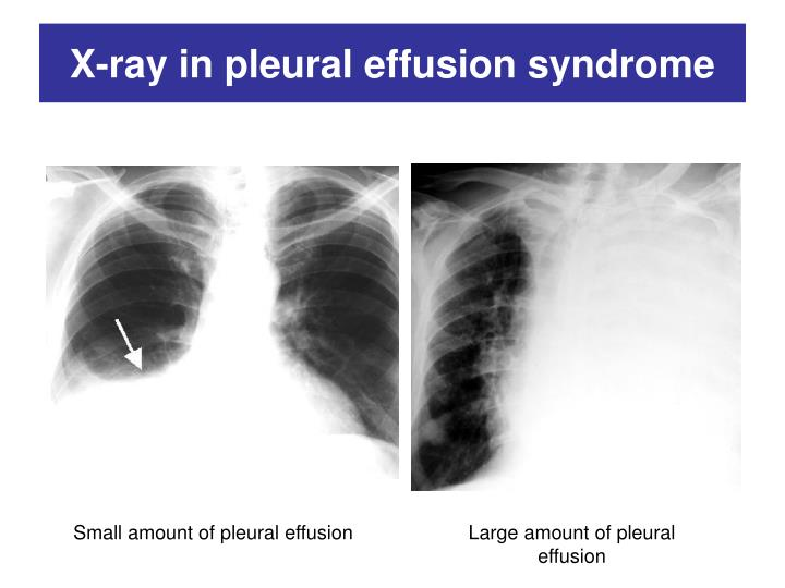 X-ray in pleural effusion syndrome