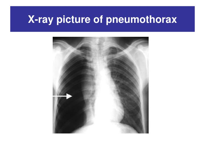 X-ray picture of pneumothorax