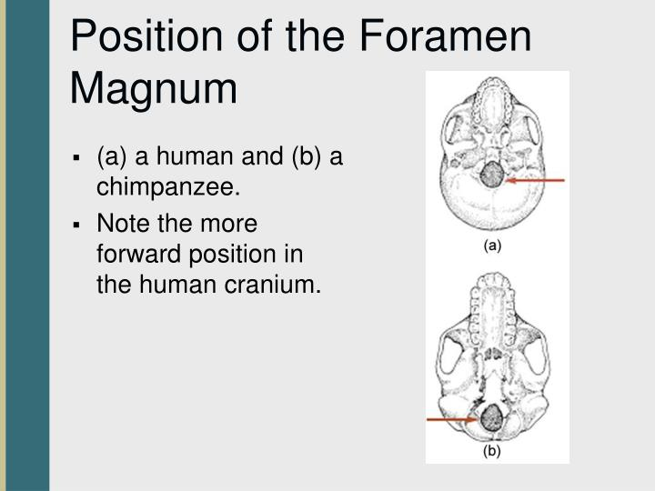 Position of the Foramen Magnum