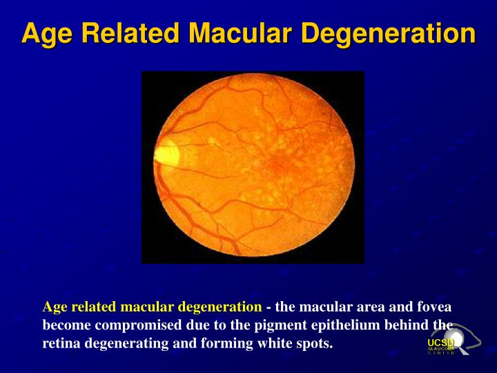 Age Related Macular Degeneration