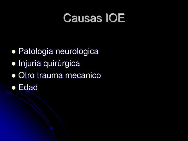 Causas IOE