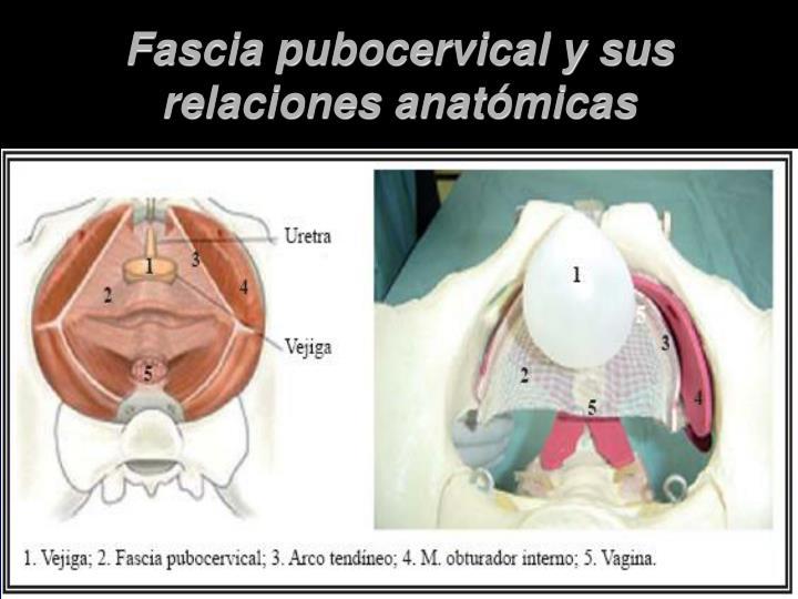Fascia pubocervical y sus relaciones anatómicas