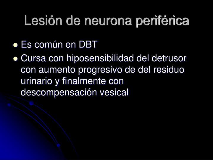 Lesión de neurona periférica