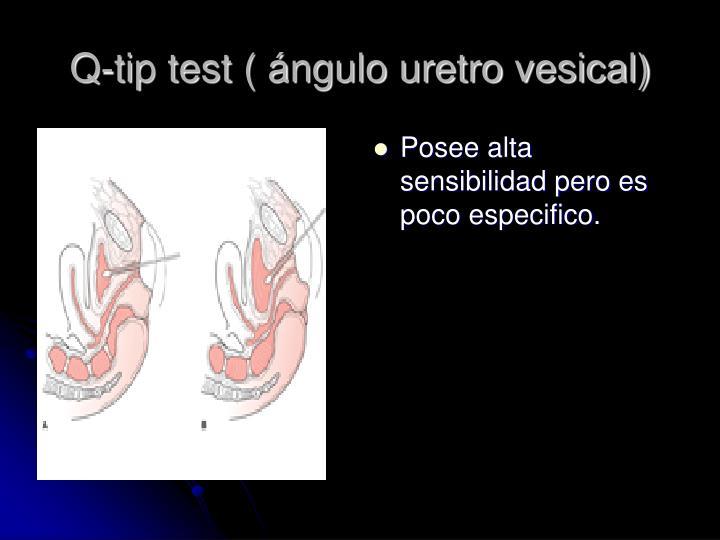 Q-tip test ( ángulo uretro vesical)