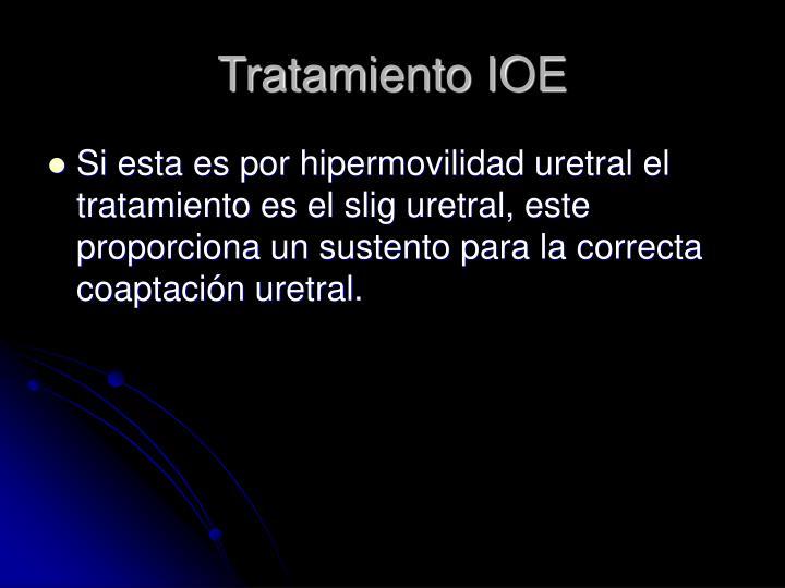 Tratamiento IOE