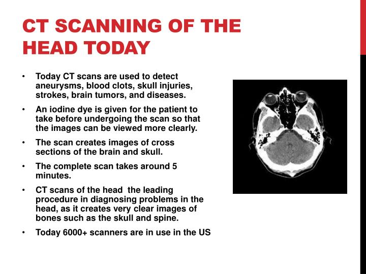 CT scanning of the head today