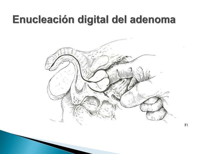 Enucleación digital del adenoma