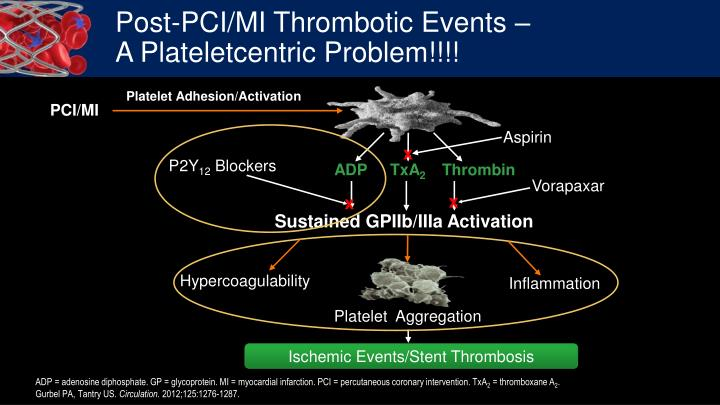 Post pci mi thrombotic events a plateletcentric problem