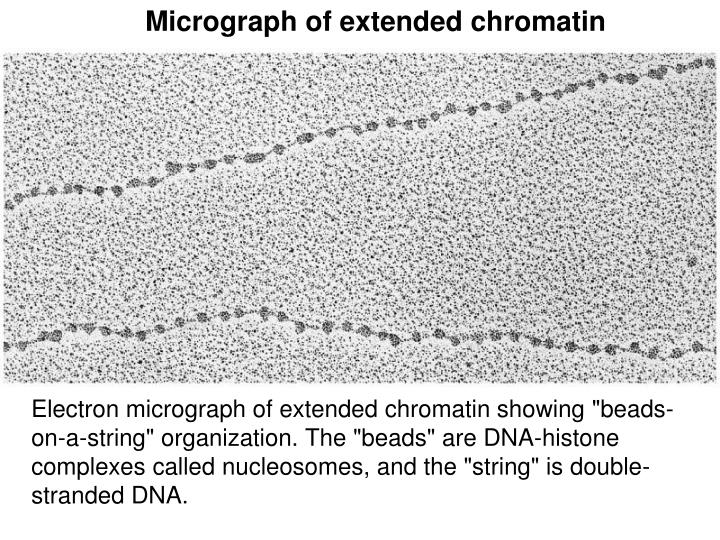 Micrograph of extended chromatin