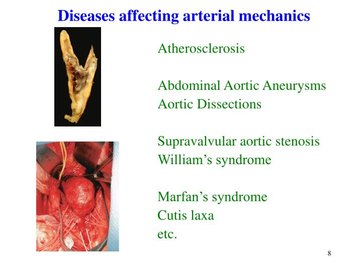 Diseases affecting arterial mechanics