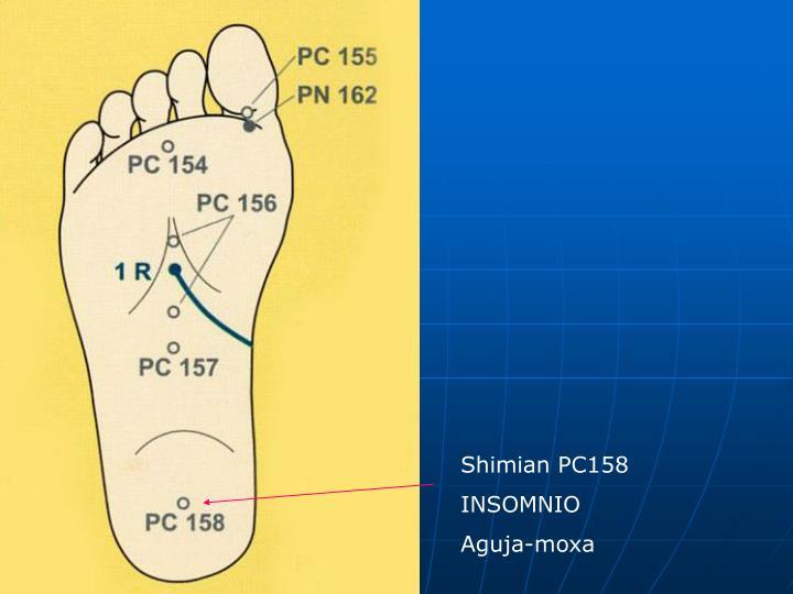 Shimian PC158