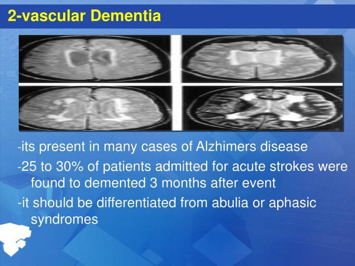 2-vascular Dementia