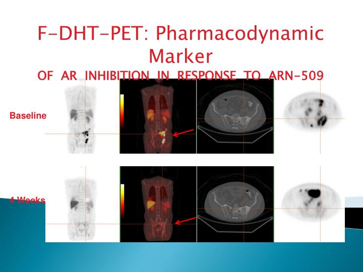 F-DHT-PET: Pharmacodynamic Marker