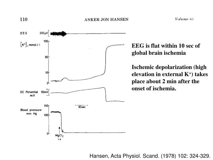 EEG is flat within 10 sec of global brain ischemia