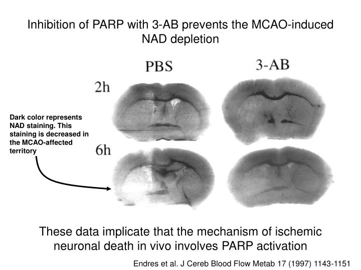 Inhibition of PARP with 3-AB prevents the MCAO-induced NAD depletion