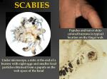scabies1
