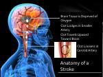 anatomy of a stroke