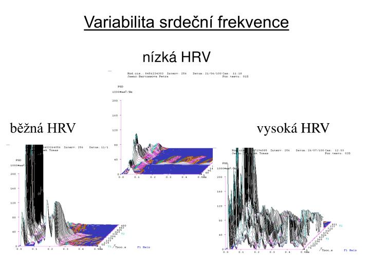 Variabilita srdeční frekvence