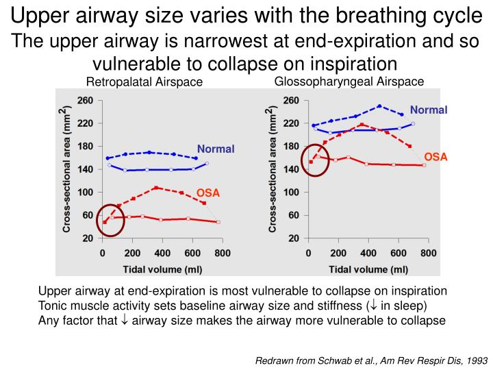 Upper airway size varies with the breathing cycle