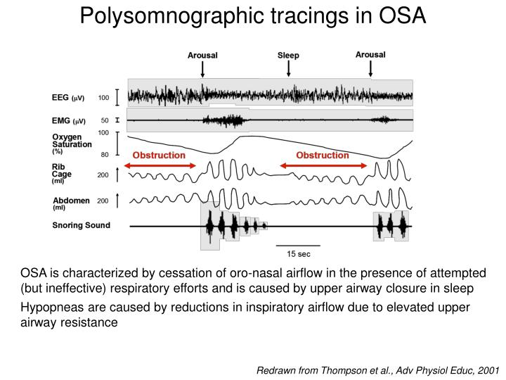 Polysomnographic tracings in OSA