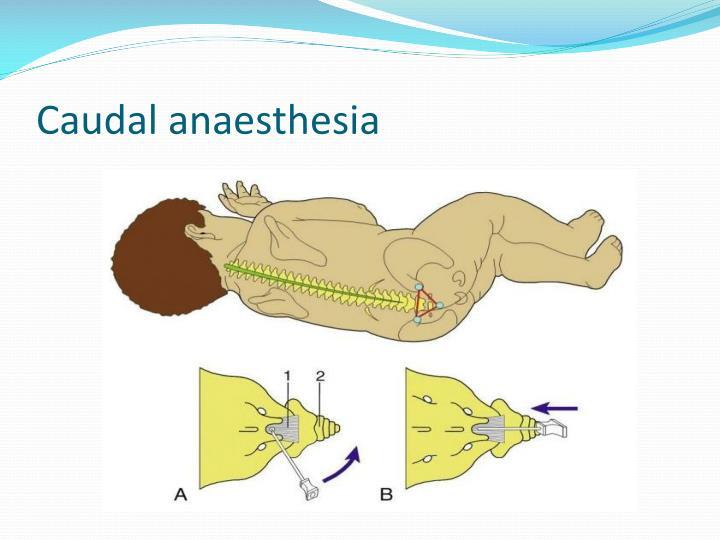 Caudal anaesthesia