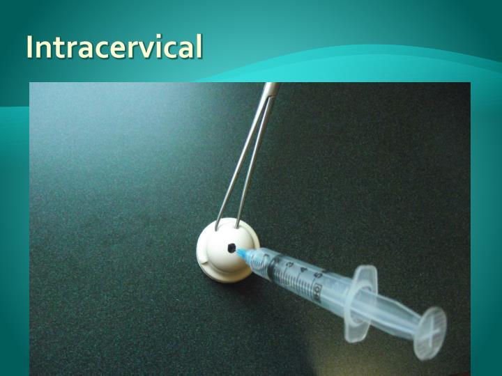 Intracervical
