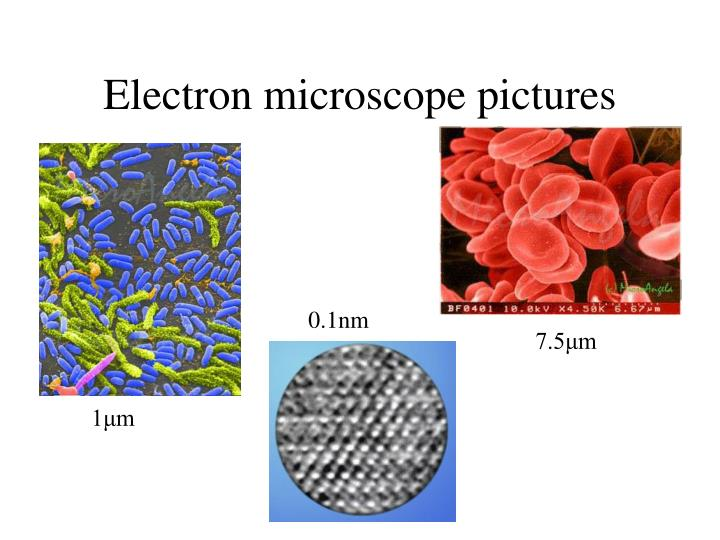 Electron microscope pictures