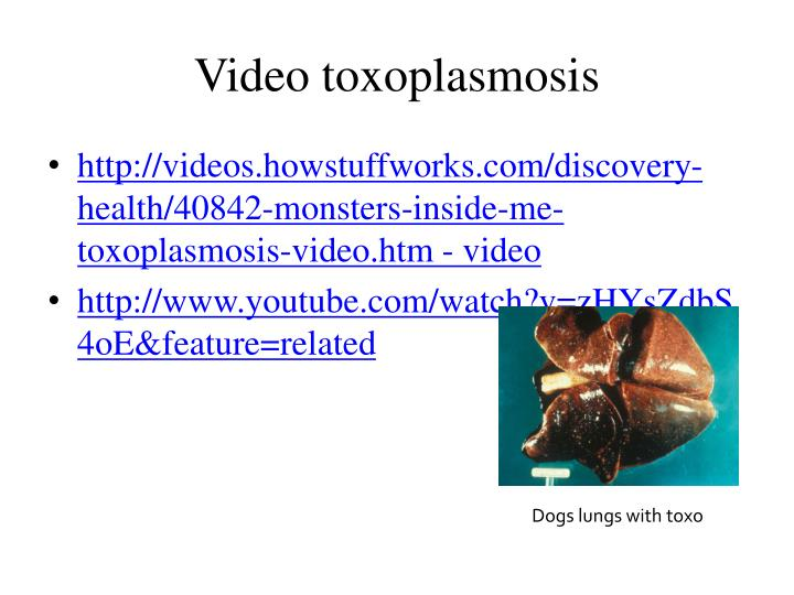 Video toxoplasmosis