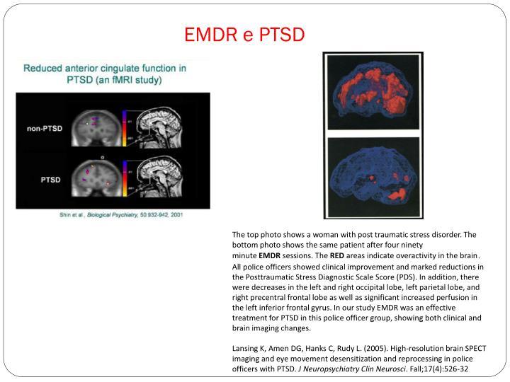 EMDR e PTSD