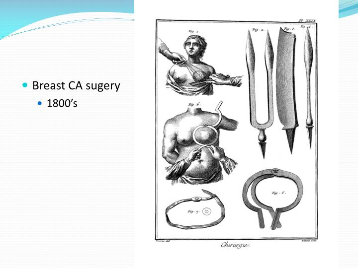 Breast CA sugery