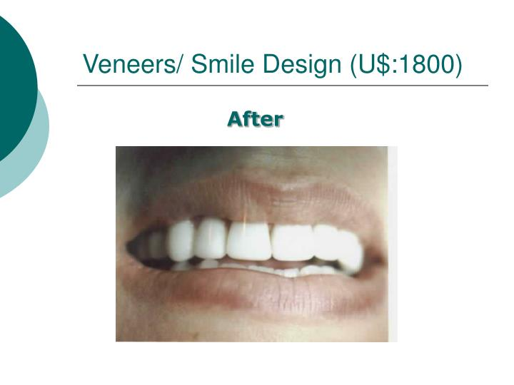 Veneers/ Smile Design (U$:1800)
