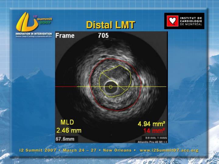 Distal LMT