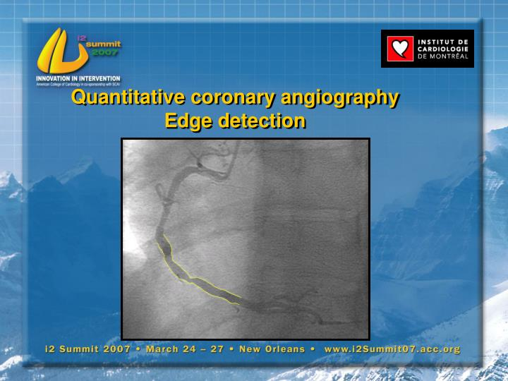 Quantitative coronary angiography