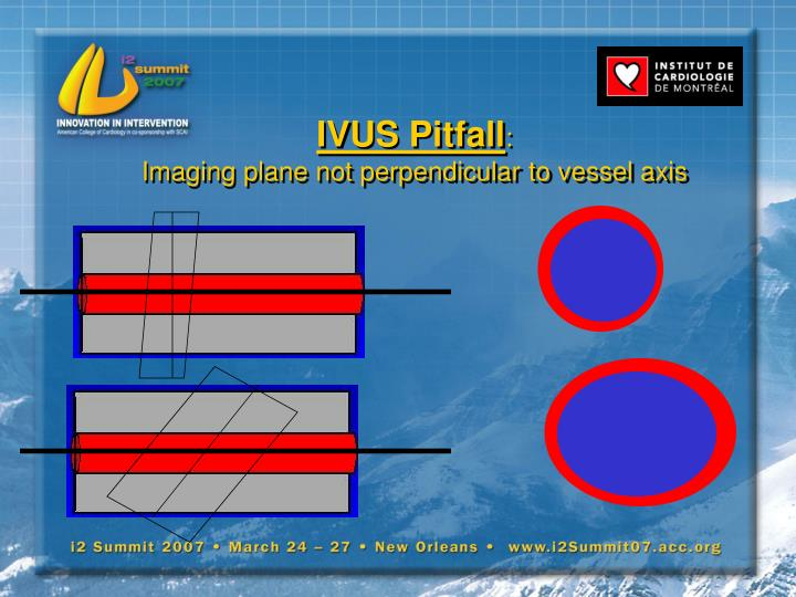 IVUS Pitfall
