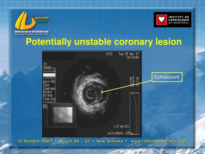 Potentially unstable coronary lesion