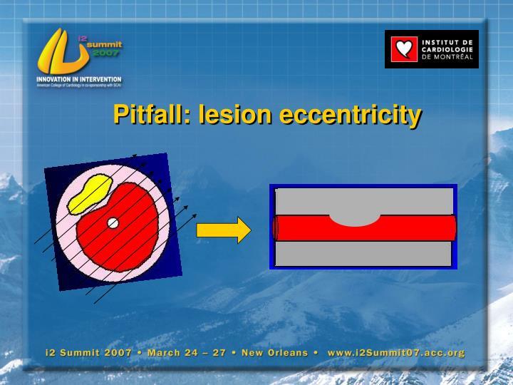 Pitfall: lesion eccentricity