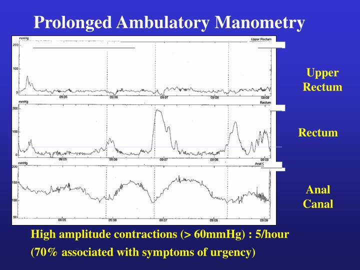 Prolonged Ambulatory Manometry