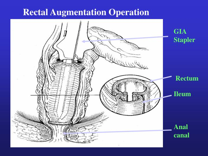 Rectal Augmentation Operation
