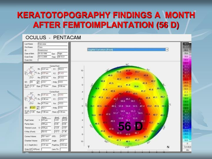 KERATOTOPOGRAPHY FINDINGS A  MONTH AFTER FEMTOIMPLANTATION (56 D)